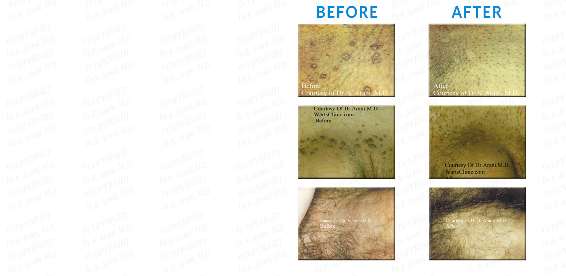 Before and After Photos - Genital Warts Treatment